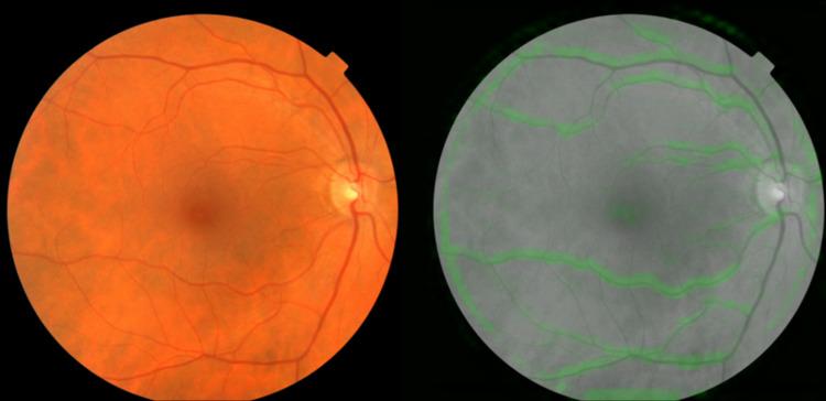 Google's Retinal Scans
